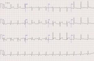 Диффузные изменения миокарда при заболеваниях сердца
