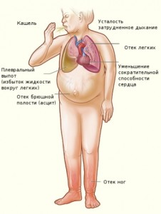 Миокардиосклероз