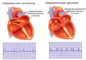 Пример нормальной работы сердца и при аритмии