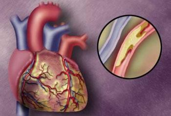Атеросклероз — главная причина инфарктов