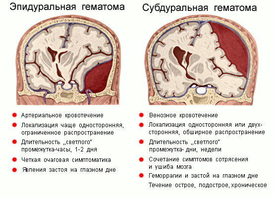 Внутричерепная гематома при чмт