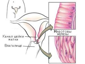 Симптомы кисты матки