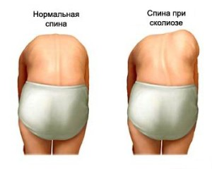 Симптоматика сколиоза