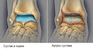 Голеностопный артроз — одно из самых распространенных заболеваний этого сустава