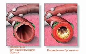 Лечение бронхита курильщика во многом очень похоже на лечение инфекционного