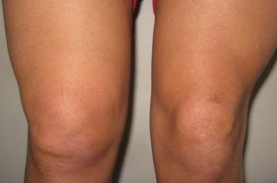 Чем могут быть вызваны отеки в области колена