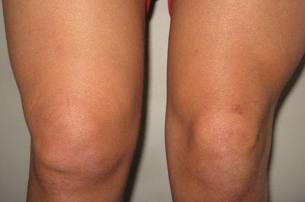 Как лечить отек колена