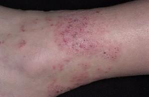 Протокол лечения атопического дерматита в россии