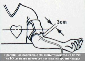 Измерение давления тонометром на плечевой артерии