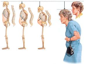 Остеопороз относится к тем болезням, против которых отлично действуют профилактические меры