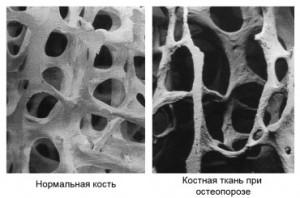 Симптоматика остеопороза
