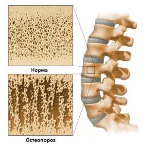 Народная медицина против истощения костной ткани