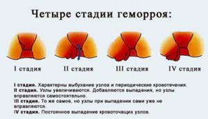 Анальные терщины лечение