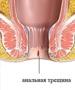 Лечение трещин и геморроя