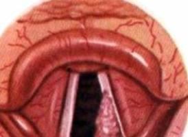 Папиллома гортани голосовых связок