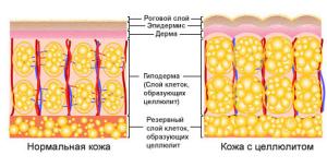 Применение скрабов от целлюлита