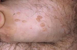 Папиллома фото у женщин на ноге