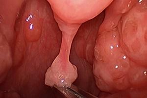 Рост папиллом в гортани или трахее не может не сказаться на общем самочувствии человека