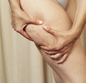 Физические упражнения улучшают кровоснабжение в целлюлитных зонах