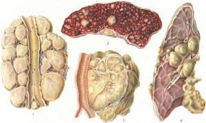 Симптомы лимфогранулематоза