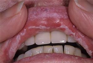 Методы лечения молочницы полости рта