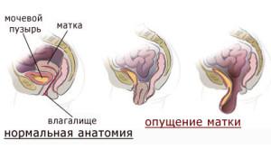 Причины опущения и выпадения матки
