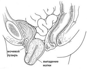 Симптомы выпадения шейки матки