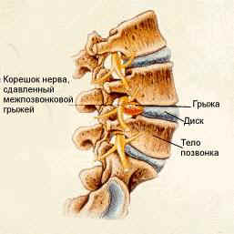 Симптомы межпозвоночной грыжи, сигнализирующие о необходимости проведения операции