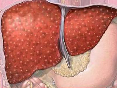 Первичный цирроз печени