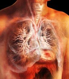 Каковы симптомы туберкулеза легких