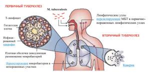 Что собой представляет туберкулез легких