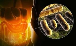 Каковы признаки дисбактериоза