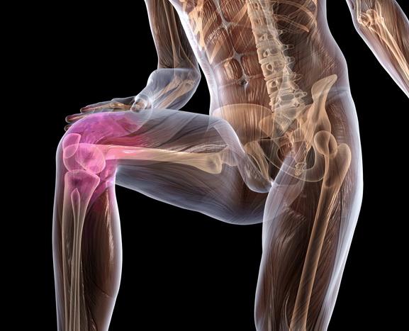 Физкультура при артрозе — лечение заболевания