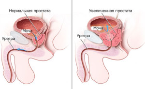 Лечение аденомы предстательной железы