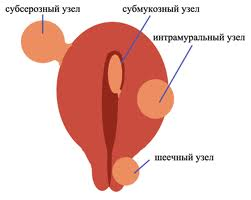 Миома во время беременности