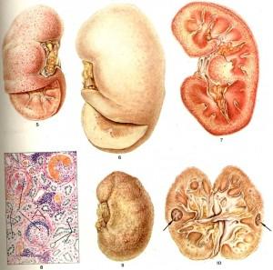 Разновидности гломерулонефрита