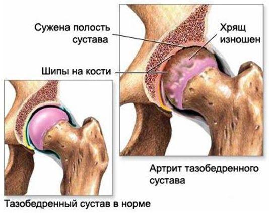 что такое заболевание тазобедренного сустава