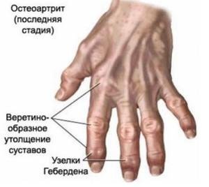 Инфекционная природа поражения суставов рук
