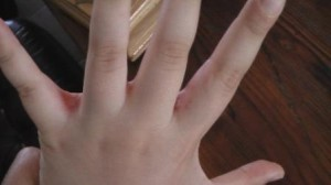 Зуд между пальцами