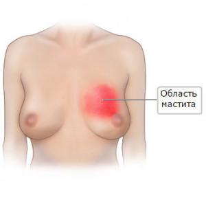 Что такое мастит груди
