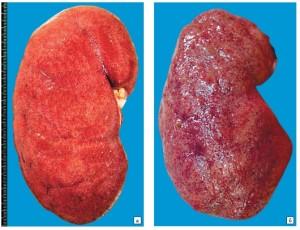 Симптомы гломерулонефрита