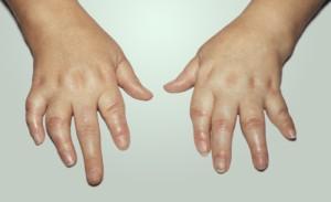 Врожденные и генетические заболевания суставов