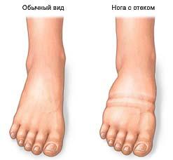 Как лечить отеки ног