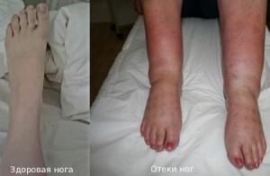 Народные средства от отеков ног