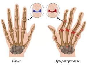 Аутоиммунные заболевания как причина поражения суставов