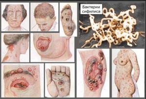 Вторичный сифилис: симптомы и лечение