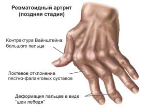 Основные формы артрита и симптомы