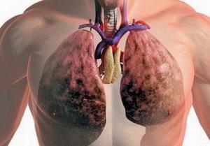 Гнойные заболевания легких