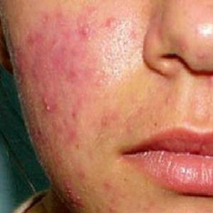 Как убрать угри на лице? Правильный уход за кожей лица