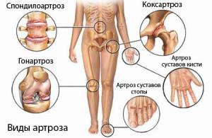 Артроз – это заболевание суставов, сопровождающееся постепенным разрушением хрящевой ткани